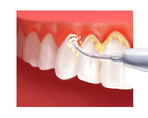Détartrage dentaire